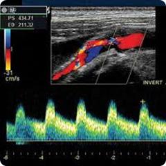 kak-opredelyat-intima-media-sonnih-arteriy